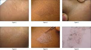 "Результат пошуку зображень за запитом ""Overview of Tinea Versicolor Fungal Infection"""