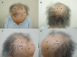 alopecia in a t cancer patient after taxane