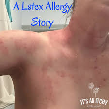 A Latex Allergy Story | It's an Itchy Little World