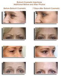 eyes botox