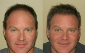 forehead reduction surgery cost worth