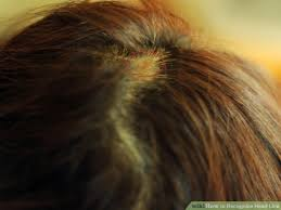 How to Recognize Head Lice 7 Steps with wikiHow