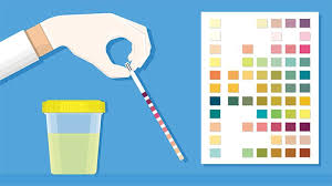 Ketones In Urine Test What It Measures And What Results