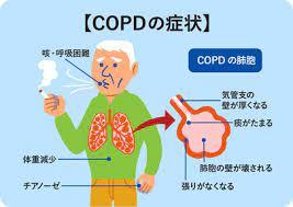 慢性 閉塞 性 肺 疾患
