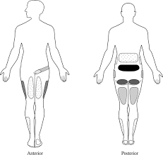 Pain Referral Patterns Fascinating Pathogenesis Diagnosis And Treatment Of Lumbar Zygapophysial