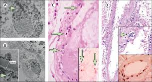 Myocarditis is an inflammatory disease of the myocardium that may present with sudden cardiac death, symptoms mimicking myocardial infarction, heart rhythm and conduction disorders, and heart failure. Endothelial Cell Infection And Endotheliitis In Covid 19 The Lancet