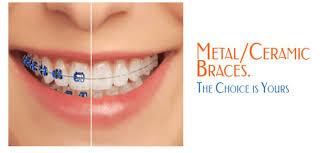 Orthodontic Braces Smile Central Brisbane Dentist