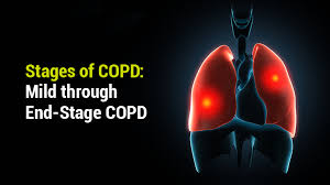 Copd Life Expectancy Chart Stages Of Copd Mild Through End Stage Copd Lung Institute