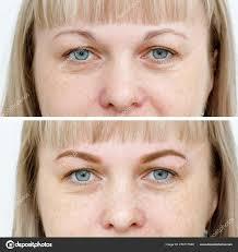 фото сравнения до и после перманентный макияж татуаж бровей