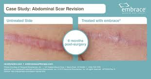 embrace scar therapy. abdominal scar revision 2 - ap10619 rev b embrace therapy t