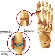 Artrose voet behandeling