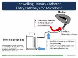 Bladder Catheterisation Urinary Catheter Types And Care For Residents With Catheters