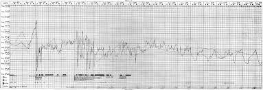 File Rheumatic Fever Temperature Chart Wellcome M0018835 Jpg