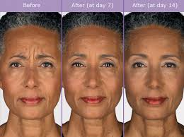 How Long Does Botox Last Botox Injections Los Angeles Beverly Hills Medical Spa