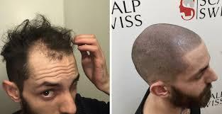 Scalp Visible Under Light Scalp Mp For Men