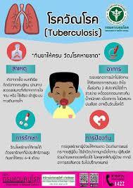 วัณโรค อาการ วัณโรคปอด สาเหตุเกิดจากอะไร