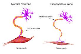 ayurvedic treatment for motor neurone