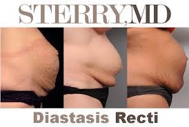 how to fix diastasis recti tighten
