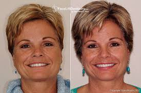 Overbite Correction And Bad Porcelain Veneers Replaced With