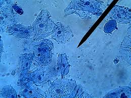 animal cells under a light microscope. Interesting Under Human Cheek Cells Stained With Methylene Blue 400x Image By  Biologycorner Creative Commons Licensed Throughout Animal Cells Under A Light Microscope