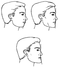 CORRELATION BETWEEN CLINICAL AND PHOTOGRAPHIC ASSESSMENT OF FACIAL PROFILE