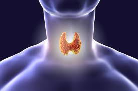 Image result for hypothyroidism