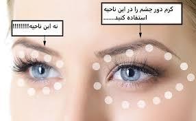 Image result for کرم دور چشم اوریفلیم