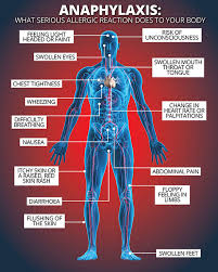 Anaphylaxis: Do YOU know the symptoms of a severe allergic reaction ...