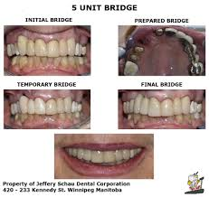 Dental Bridges | Winnipeg Family Dentist | Dr. Raed Kamal