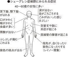 シェーグレン 症候群 症状