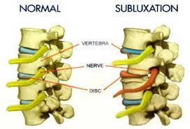 Vertebral Subluxation Chart Back Pain Neck Pain And Joint Pain Escondido Chiropractors