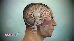เด็กหัวใจแกร่งต้องต่อสู้กับโรคมะเร็งที่แกนสมองระยะสุดท้าย : พบหมอรามา ช่วง  Big Story 6 ก.ค.60 (2/5) - YouTube