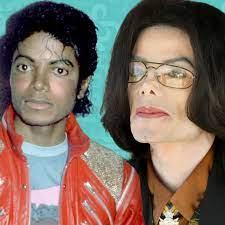طبيب مايكل جاكسون: (والده ضربه والواقي الذكري ليلًا)!