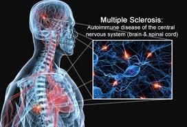 Can You Die From Ms Early Signs Symptoms And Treatment