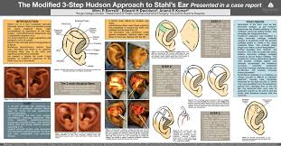 Improvement In The Treatment Of Stahls Ear The Modified 3 Step