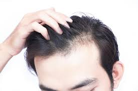 does vitamin d deficiency cause hair loss
