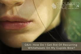 recurring whiteheads on my cupids bow