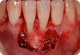 """Résultat de recherche d'images pour """"greffe gingivale dentaire site donneur receveur"""""""
