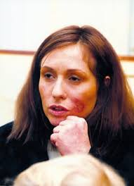 Tereza Pergnerová po pěti letech heroinu. Autor: abl - 225211_tereza-pergnerova