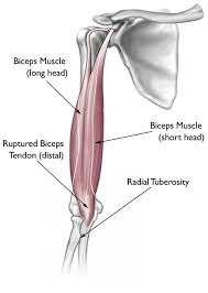 Unlike these others, the muscle belly is mostly in the upper part of the forearm and the. Biceps Tendon Tear At The Elbow Orthoinfo Aaos