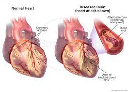 Normal Heart Compared to Heart Attack – Medmovie.com