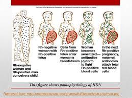 Rh Incompatibility Chart Hemolytic Disease Of Newborn Hdn