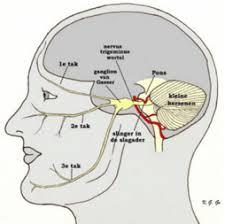 hoofdpijn linkerkant slaap