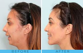 Overbite Surgery 101 Everything You Need To Know