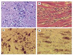 Lupus myocarditis merits urgent clinical attention because of the likely progression to arrhythmias, conduction disturbances and heart block, dilated cardiomyopathy, and heart failure. Figure 1 West Nile Virus Encephalitis And Myocarditis In Wolf And Dog Volume 9 Number 10 October 2003 Emerging Infectious Diseases Journal Cdc