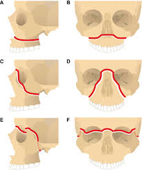 Le Fort Fracture Management Of The Traumatized Airway Anesthesiology Asa Publications