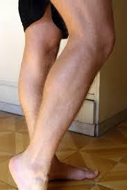Leg Wikipedia Cauf Leg Wikipedia
