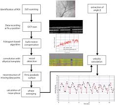 Flow Chart For Bidirectional Doppler Fd Oct Flow Chart