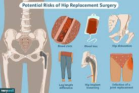 Light Jogging After Hip Replacement Hip Replacement Surgery Things To Consider