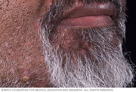 Folliculitis - Symptoms and causes - Mayo Clinic